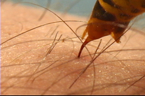 A Yellow Jacket Sting (photo credit: Richard Martyniak)